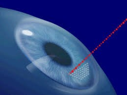 anillos corneales Cirugía Refractiva Láser con técnica Intralase
