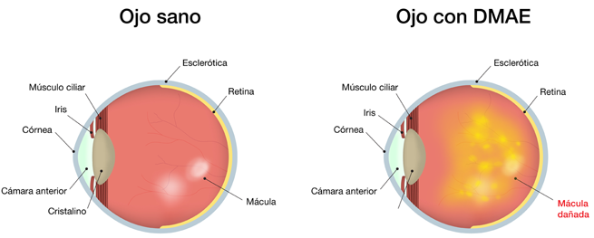 sintomas de ojo dmae La DMAE o Degeneración Macular