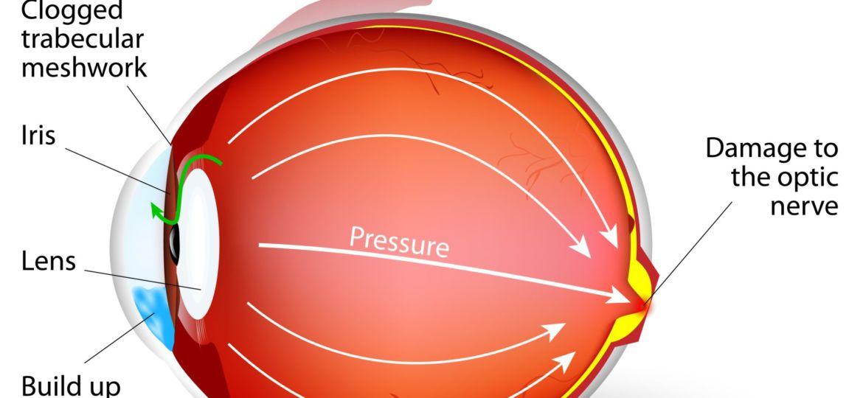 todo sobre el glaucoma