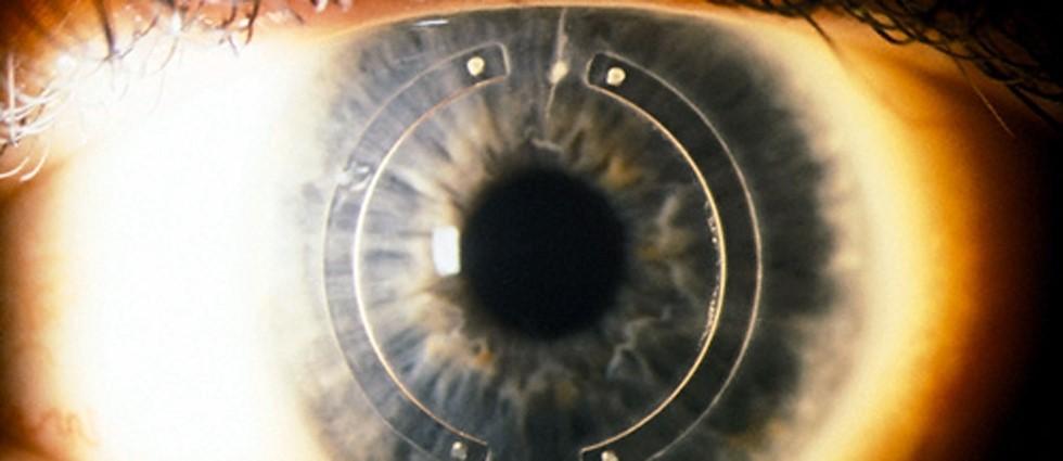 cirugia ocular