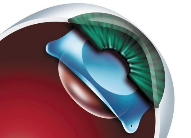 lente intraocular faquica 637x461 La cirugía refractiva con implante de lentes intraoculares