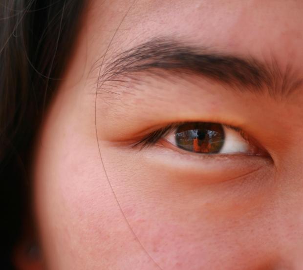 intervención de oculoplastia 1 Oculoplastia para rejuvenecer los párpados