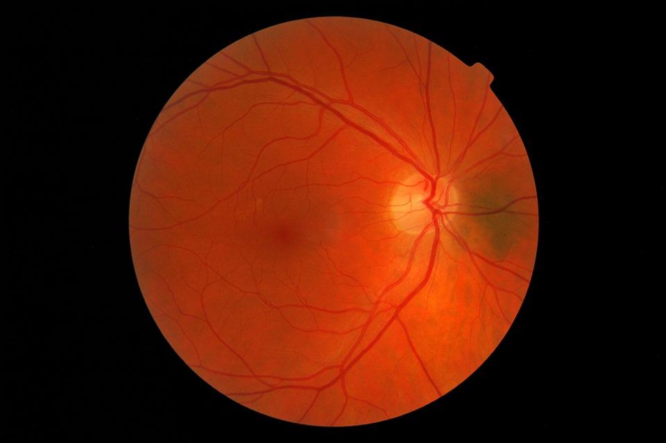 retinosis pigmentaria Retinosis pigmentaria: síntomas y tipologías