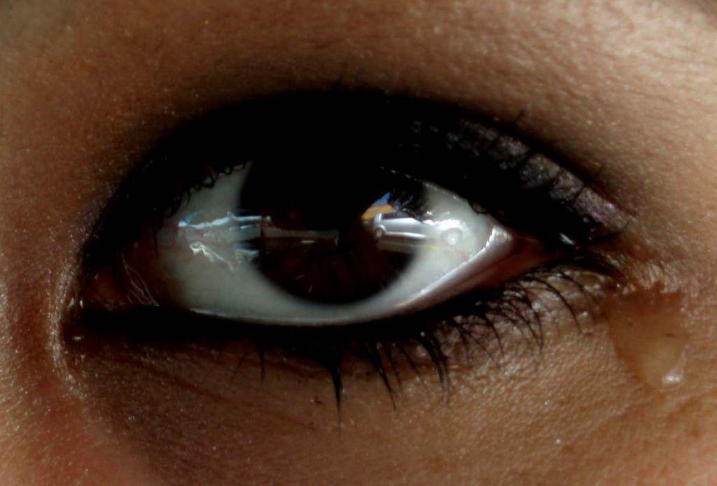 lagrimeo 1024x695 Lagrimeo excesivo en los globos oculares