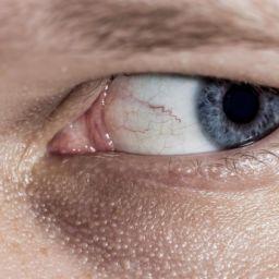 refraccion-ocular