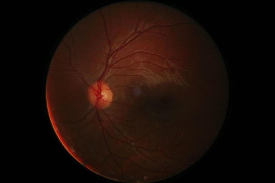 edema macular retina