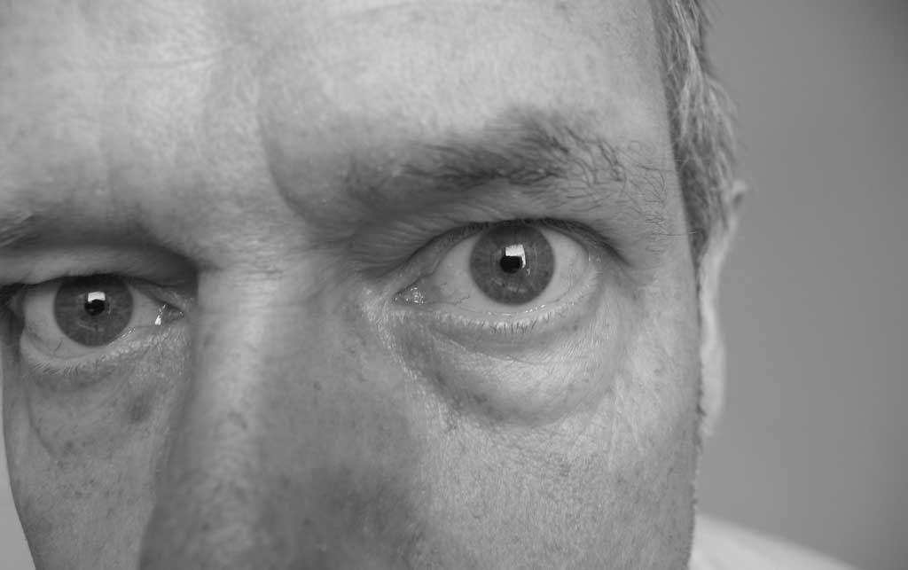 bolsas palpebrales 1024x643 ¿Cómo afecta el estrés a la visión?