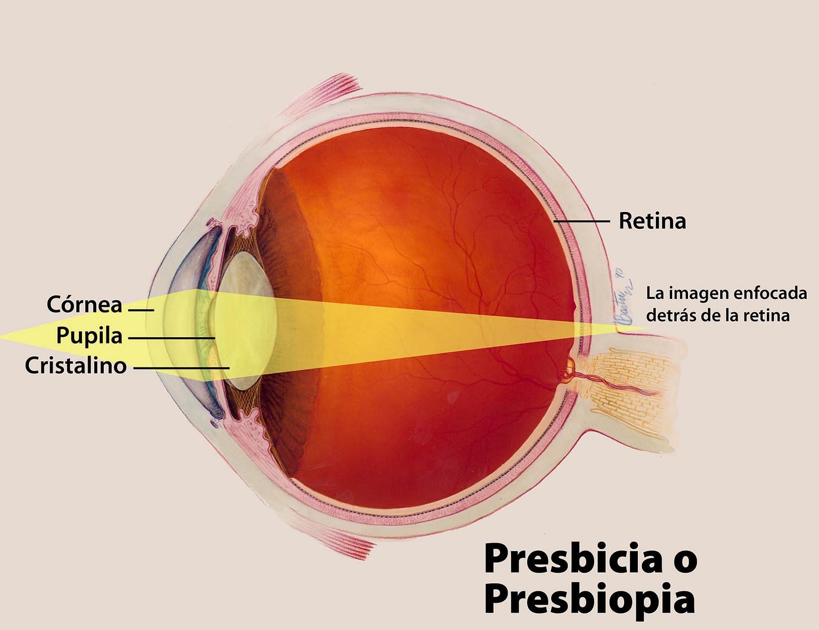 cirugia-de-la-presbicia-con-lentes-bifocales