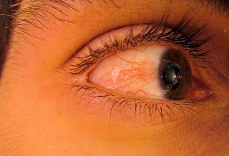 que pasa cuando te sale una mancha roja en el ojo