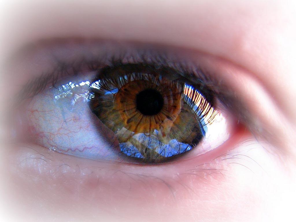 rotura de capilares en los ojos Rotura de capilares en los ojos, causas y tratamiento