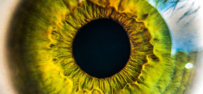 cirugia refractiva con laser intralase