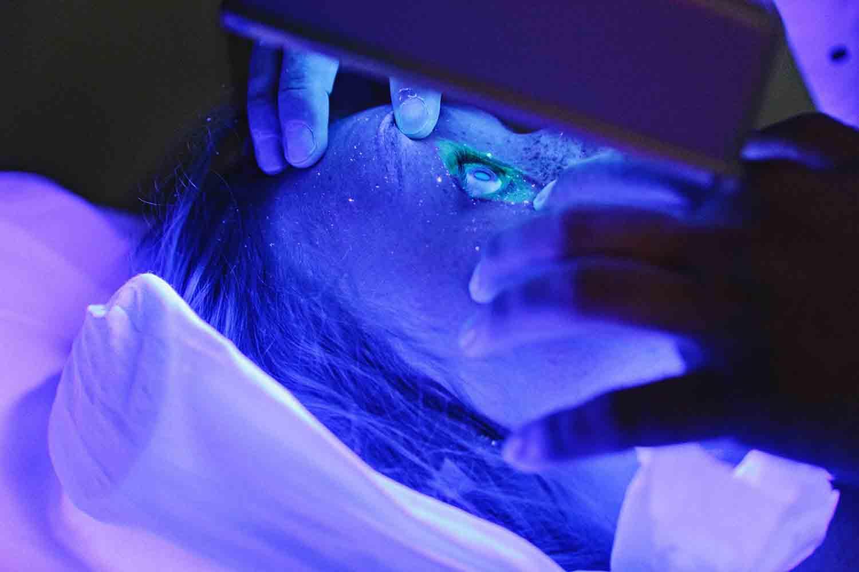 cirugia-refractiva-laser-intralase