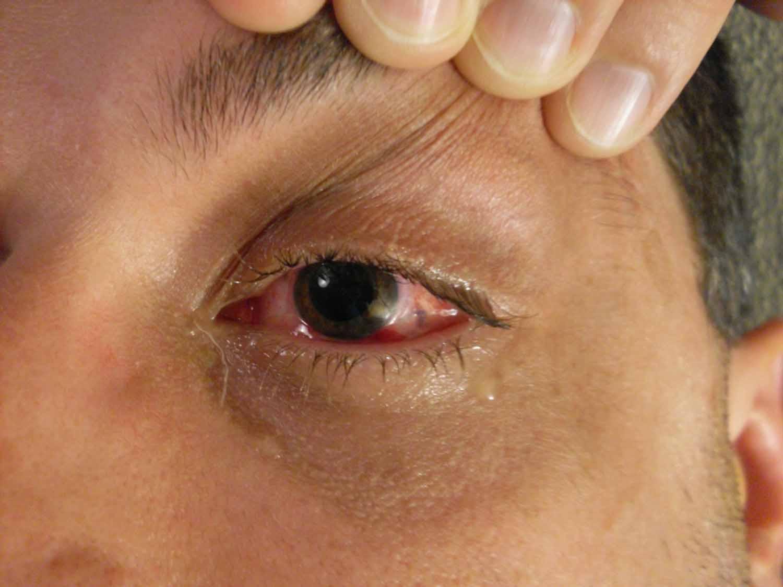 desprendimiento de retina 1 Causas del desprendimiento de retina
