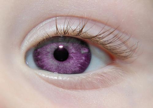 albinismo ¿A qué se debe el color de nuestros ojos?