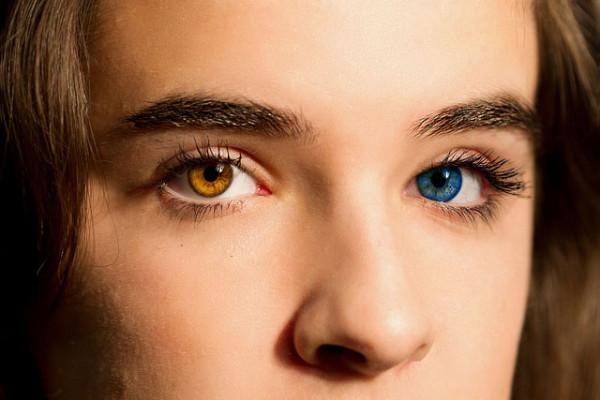 heterocromia-iridium-e1452511967353