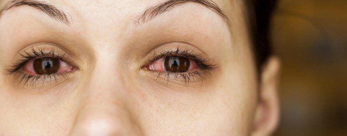 oftalmologia costa rica conjuntivitis alergica Conjuntivitis, por qué se produce y cómo tratarla