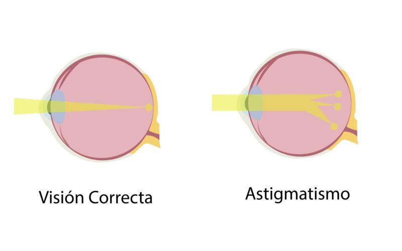 astigmatismo jpg 800x500 Astigmatismo