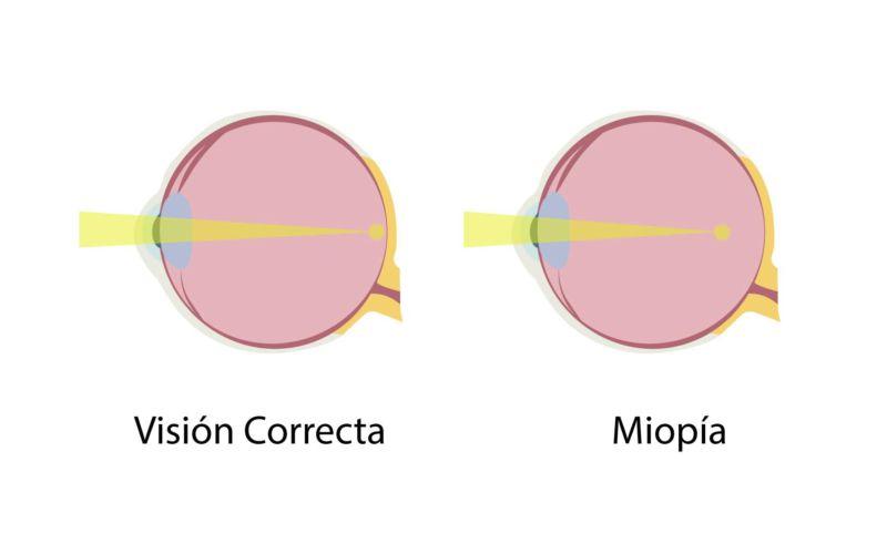 miopia jpg 800x500 Miopía