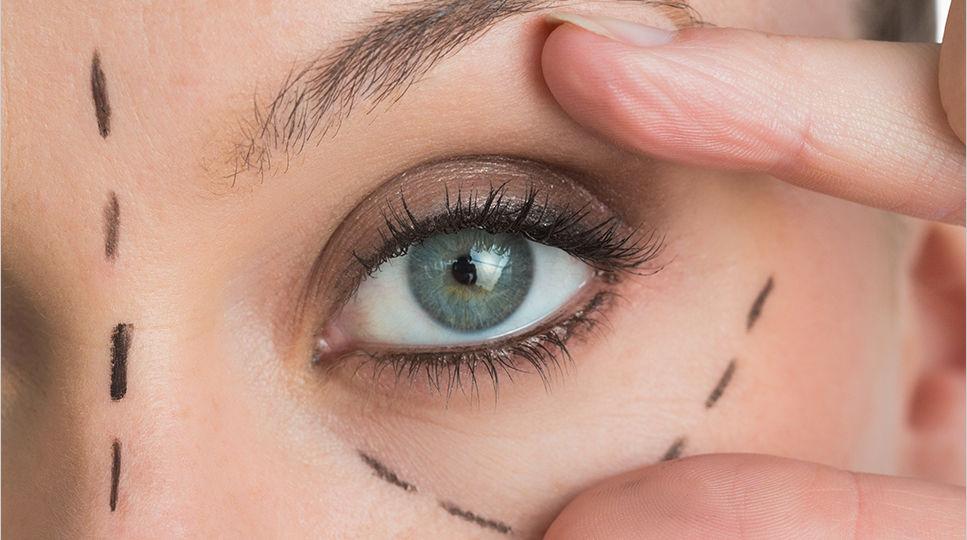Cirugía plástica ocular