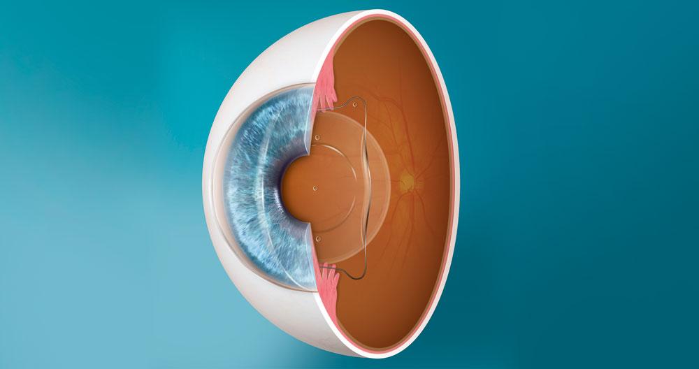Ventajas principales de las lentes ICL