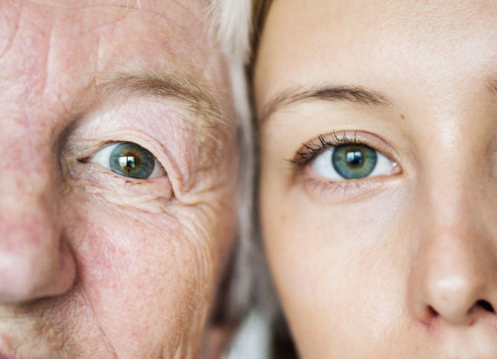 Tension ocular 1024x740 Cómo solucionar el párpado caído