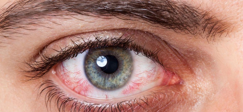 Tipos de conjuntivitis y cómo tratarlas