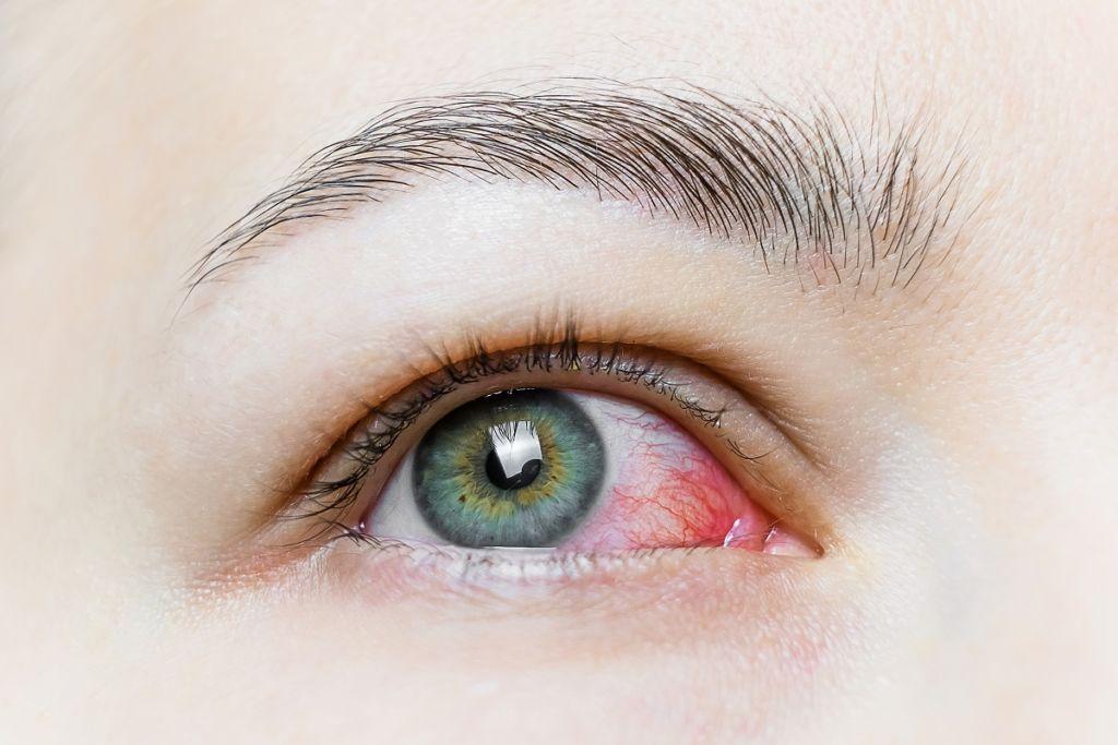 Que es la queratoconjuntivitis 1024x683 Rotura de capilares en los ojos, causas y tratamiento